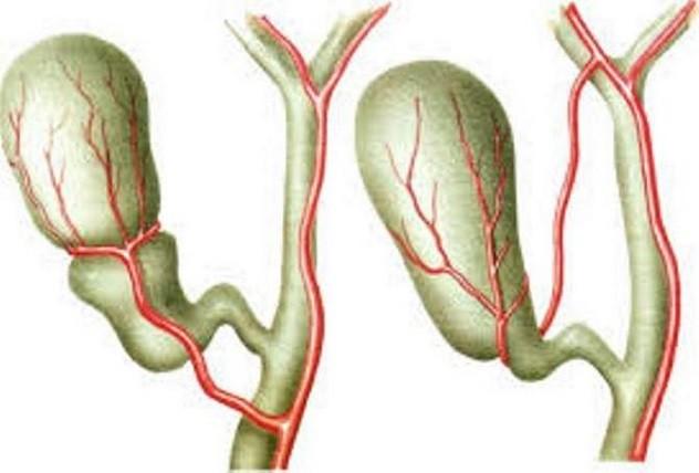 Как лечить перегиб желчного пузыря 🚩 перегиб загиб желчного операция 🚩 Лечение болезней